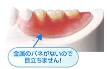 バネのない入れ歯なし 6