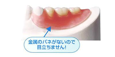 バネのない入れ歯