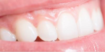 歯周外科(歯周病治療)